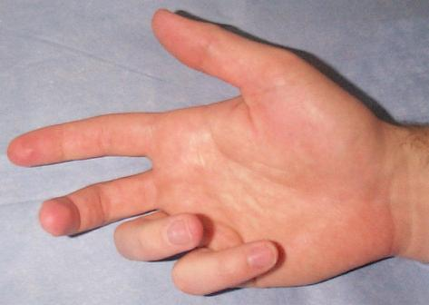 Dupuytren's Contracture: Overview - Dupuytren Contracture ...